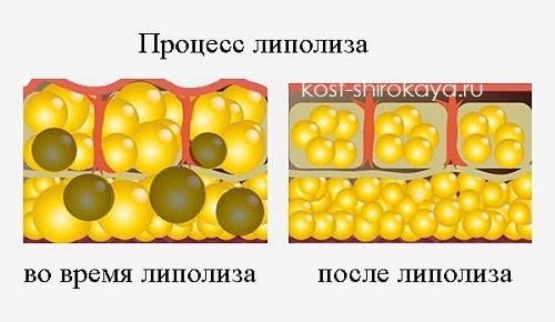 жировой обмен, как сжечь жир, как похудеть