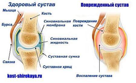 Почему болят колени,локти,плечи.Боль в суставах: что делать?