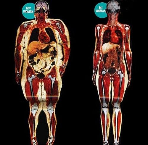 типы телосложения как определить,Широкая кость,кость широкая фото,худые с широкими костями,ой ты кость широкая,широкая кость бедра,широкая кость как определить