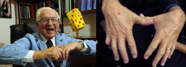 Почему хрустят суставы,почему хрустят суставы во всем теле и в пальцах,почему хрустят колени,тазобедренный сустав,кисти рук,плеча,как лечить