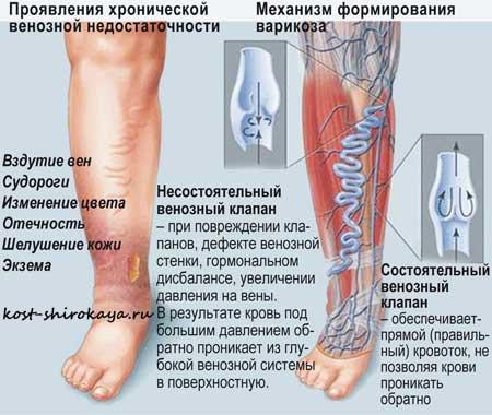 Варикоз на ногах лечение, профилактика и причина варикоза,закупорка вен