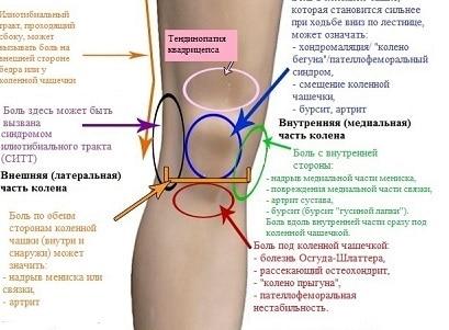 Почему болят суставы: 5 наиболее вероятных причин болей