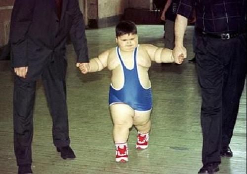 Удивительное до и после - что стало с самым толстым ребенком в мире: мы не поверили своим глазам!