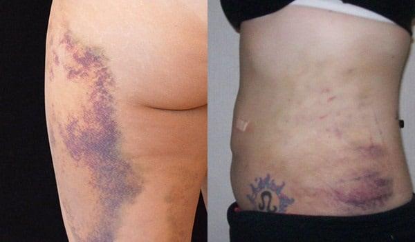 Лучше уж сама похудею: 8 реальных последствий липосакции с фото примерами от звезд