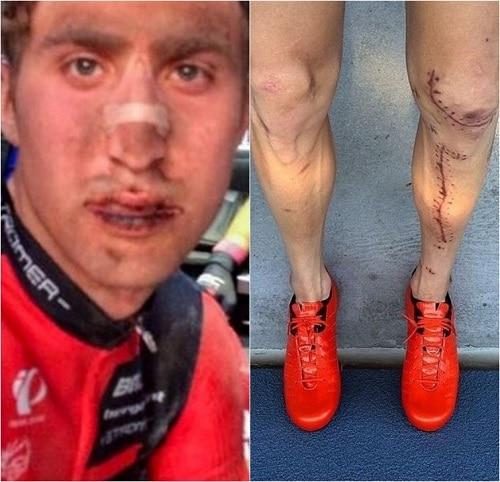 Спортсмены никогда не жалуются: пугающая и жуткая сторона побед и медалей - 12 историй с фото