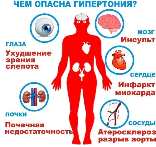 Метаболический синдром: смертельный квартет для тех, кому 50 лет и больше - что это простым языком