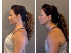 Важная причина сахарной зависимости: проверьте шею