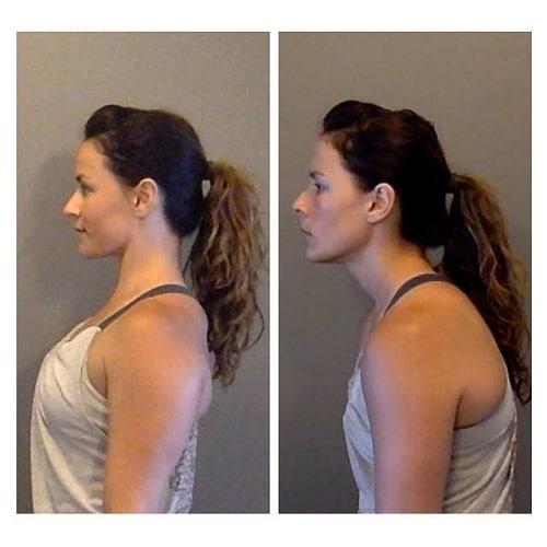 Ноющая боль под левой и правой лопаткой сзади со спины: 20 причин, почему болит и что делать?