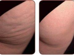 ТОП-8 процедур, которые уберут лишние сантиметры: как быстро визуально улучшить кожу и скрыть целлюлит