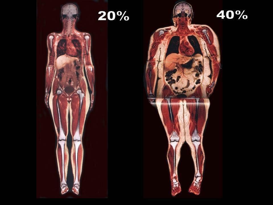 Почему жир на животе самый опасный для здоровья?