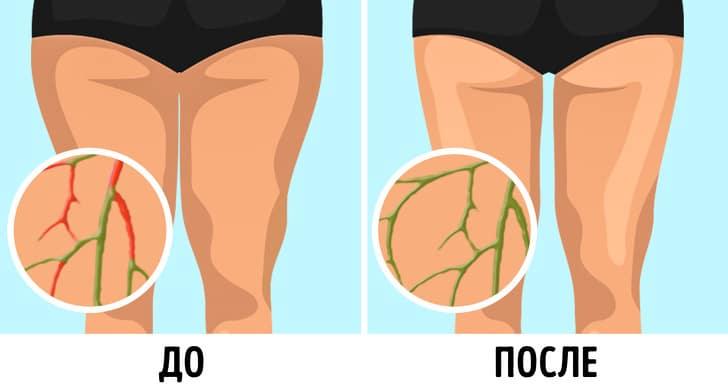 Лимфу не нужно разгонять, а упражнения для этого (а ля 100 раз подняться на носочки) - маркетинг